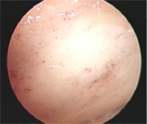 腫瘍切除後の骨内