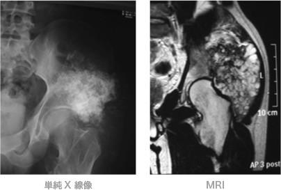 単純X線像 MRI