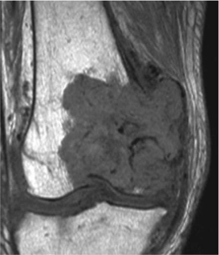 腫瘍用人工膝関節置換術
