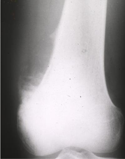 単純X線像