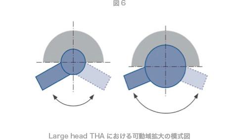Large head THAにおける可動域拡大の模式図