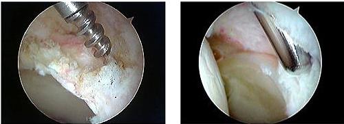 FAI症候群に対する股関節鏡手術