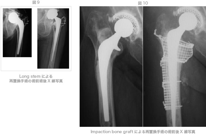 Long stemによる再置換手術の術前術後X線写真