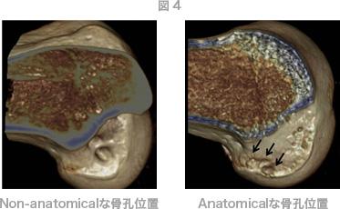 図4 Non-anatomicalな骨孔位置 Anatomicalな骨孔位置