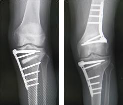 Double osteotomy