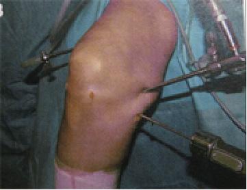 後内側portalと経cystic portal