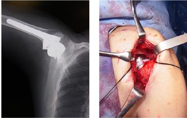 肩関節腱板断裂2
