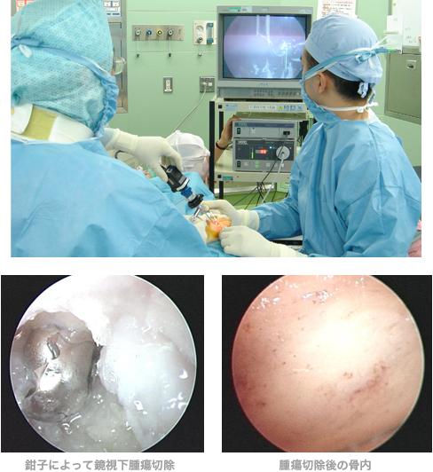 鉗子によって鏡視下腫瘍切除 腫瘍切除後の骨内