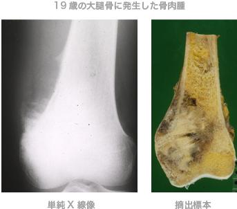19歳の大腿骨に発生した骨肉腫