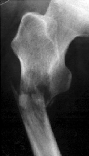 大腿骨の病的骨折