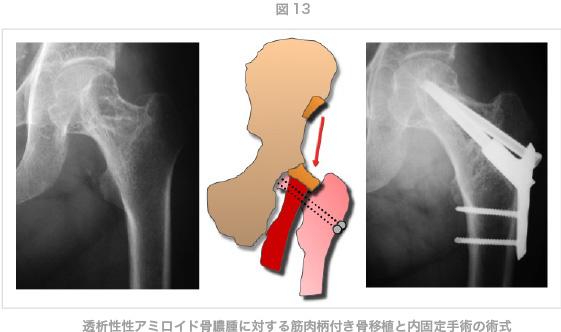 透析性性アミロイド骨膿腫に対する筋肉柄付き骨移植と内固定手術の術式