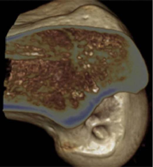 Anatomicalな骨孔位置