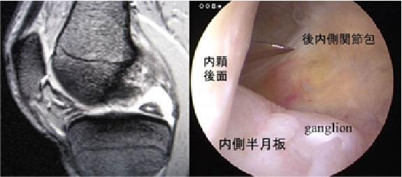 後内側compartmentの観察内側半月板ganglionが確認できる