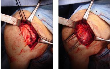 肩関節腱板断裂1