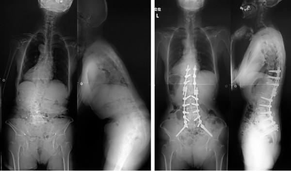成人脊柱変形手術